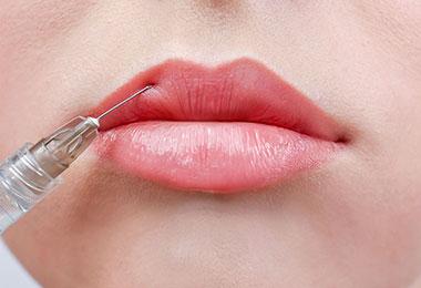L'embellissement de la bouche sans chirurgie