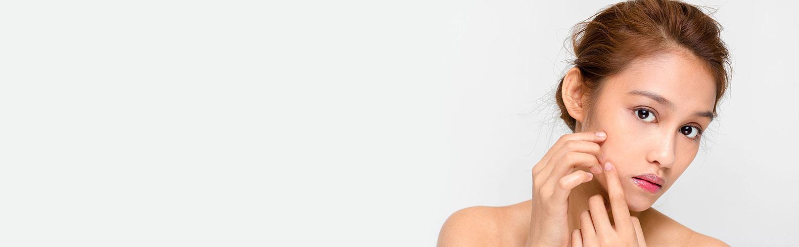 Traitement d'acné à Lyon - médecine esthétique | Dr Corniglion