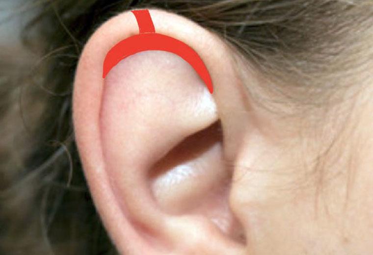 Les lobes d'oreille