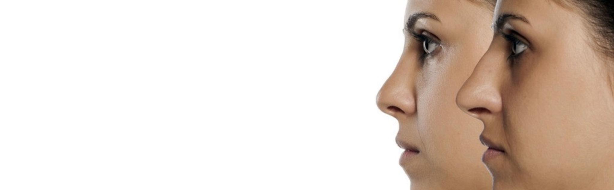 Chirurgie esthétique du nez ou rhinoplastie à Lyon - Dr Corniglion